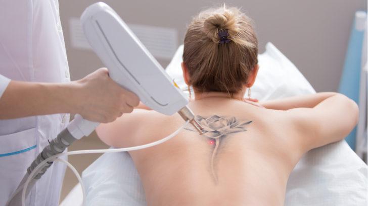 odstraneni-tetovani-1-728x409.jpg