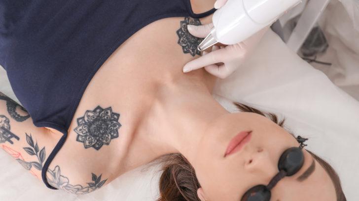 odstraneni-tetovani-2-728x409.jpg
